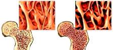 При остеопорозе у женщин