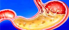 При повышенной кислотности желудка