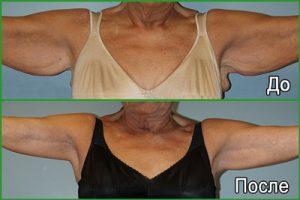 Брахиопластика: Фото до и после
