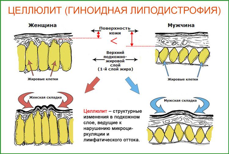 Целлюлит (липодистрофия))