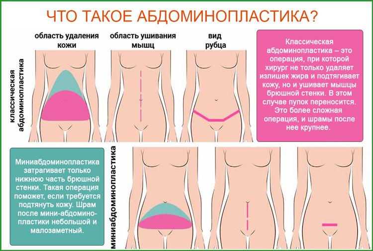 Абдоминопластика (пластика живота): что это такое