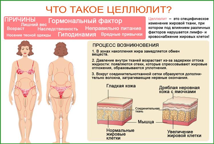 Целлюлит (липодистрофия)