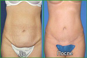 Абдоминопластика: фото до и после пластики живота
