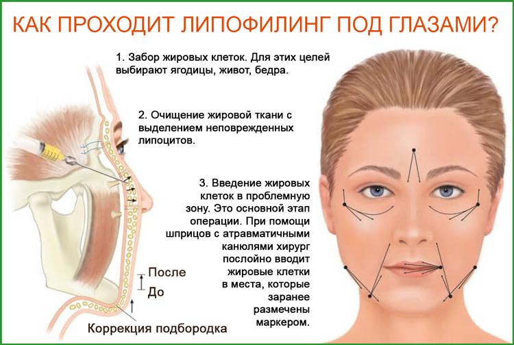 Липофилинг под глазами: как проходит процедура