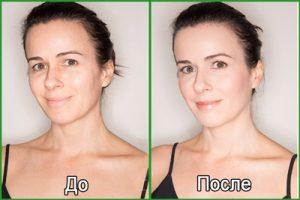 Фото до и после крема-лифтинга для лица