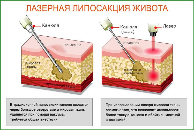 Лазерная липосакция (лазерный липолиз) живота