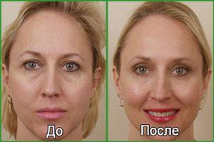 Липофилинг глаз: что это, фото до и после