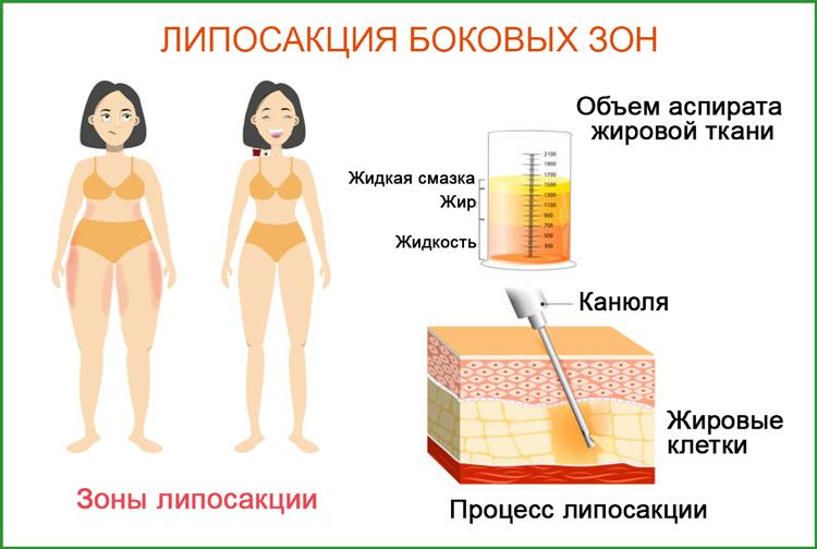 Удаление жировых отложений (липосакция) в боковых зонах