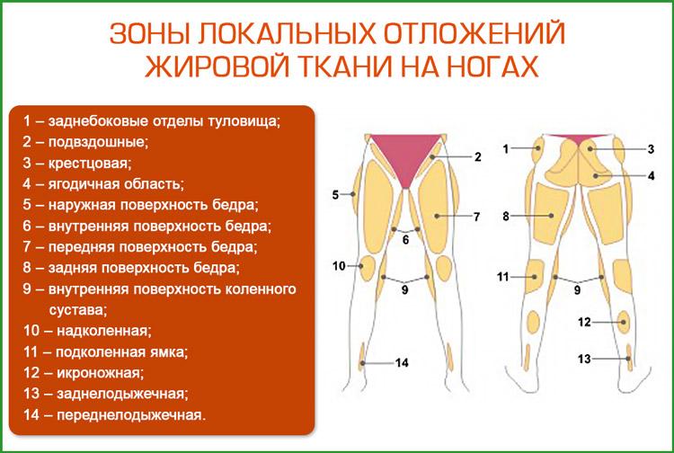 Зоны локальных отложений  жировой ткани на ногах
