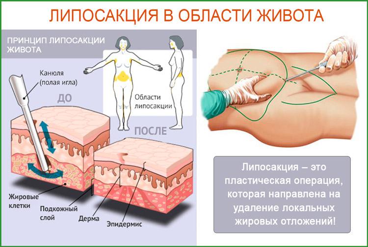 Липосакция. Вакуумное удаление жира