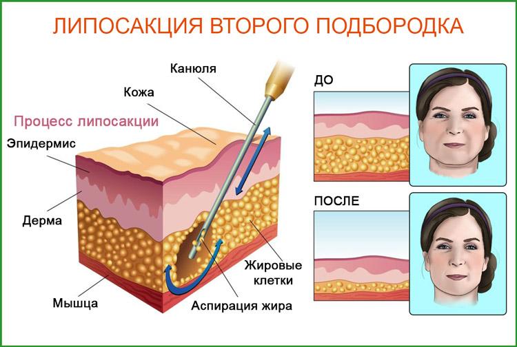 Липосакция  лица, подбородка (шеи), щек