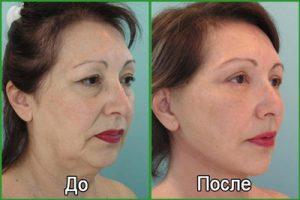 Подтяжки лица нитями (нитевой лифтинг): фото до и после
