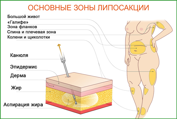 Основные зоны липосакции, удаление жира