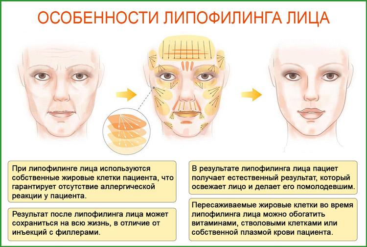 Липофилинг лица: oсобенности процедуры