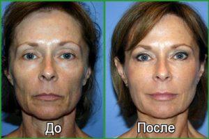 Плазмолифтинг лица. Фотографии ДО и ПОСЛЕ