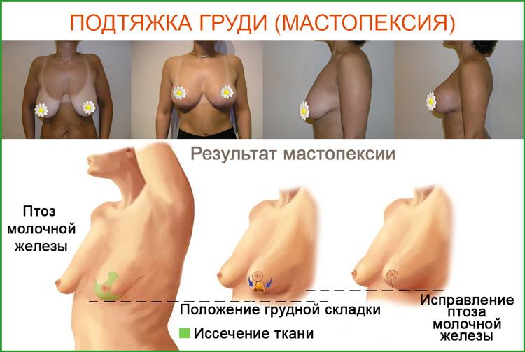 Подтяжка груди или мастопексия