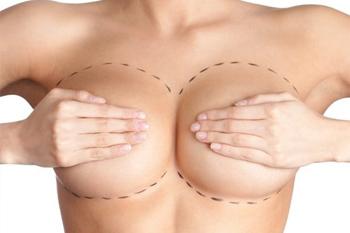 Подтяжка грудных желез у женщин различными способами
