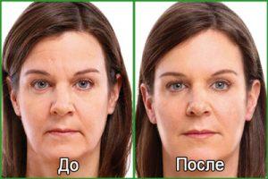 Подтяжка лица, фото до и после
