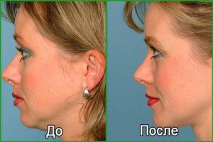 Подтяжка шеи (платизмопластика): до и после