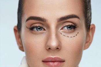 Эффективные способы подтяжки деликатной зоны вокруг глаз