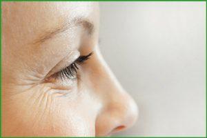 Морщины вокруг глаз: как убрать?