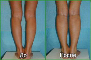 Коррекция формы ног