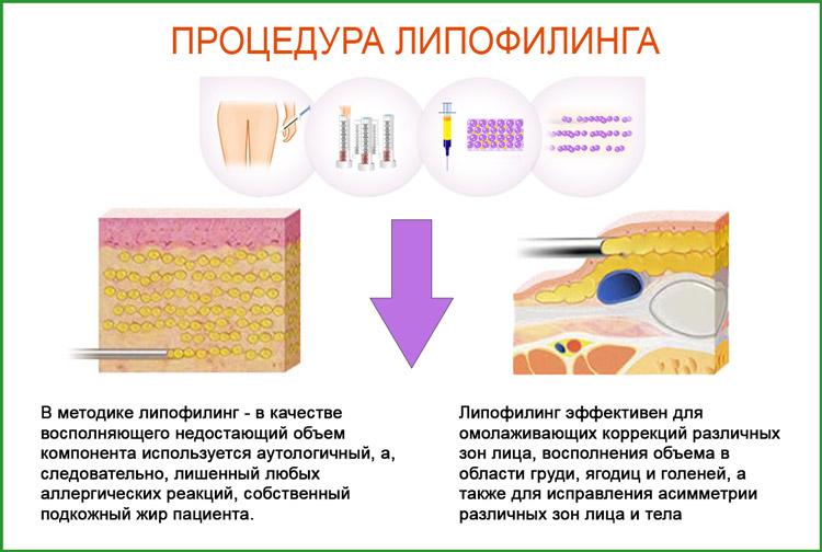 Липофилинг: омоложение за счет собственного жира