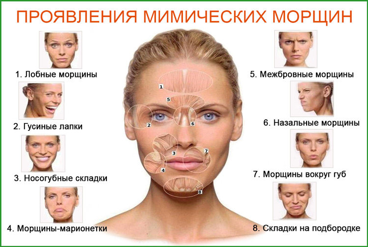 Мимические морщины: симптомы, причины, проявления