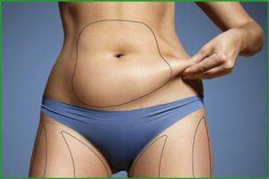 Операции по удалению жира с живота