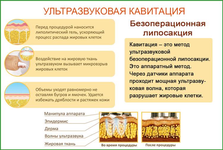 Кавитация: метод избавления от жировых отложений