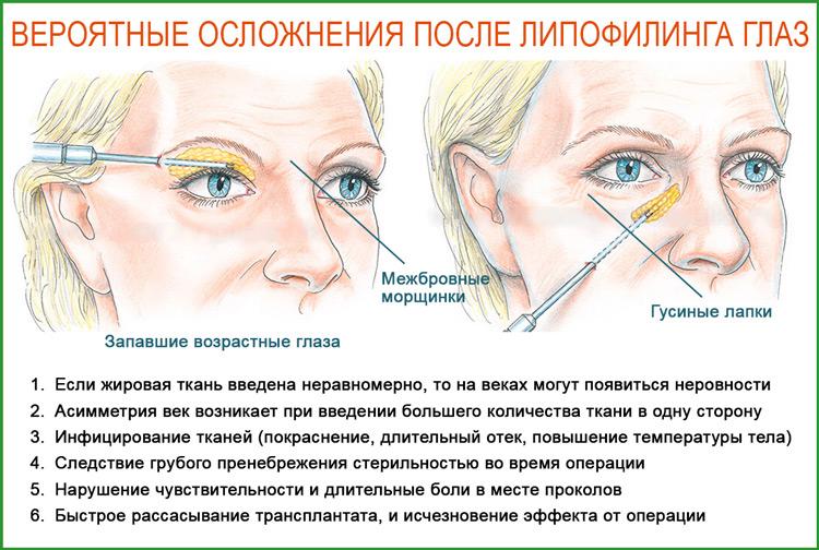 Липофилинг глаз: осложнения после процедуры