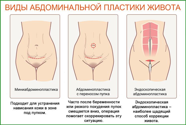 Абдоминопластика: виды