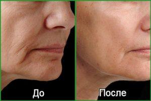 Фото до и после процедуры фракционного термолиза