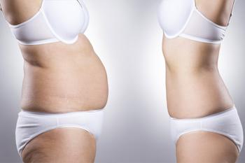 Дряблая кожа, растяжки и обвисший живот: какие меры помогут