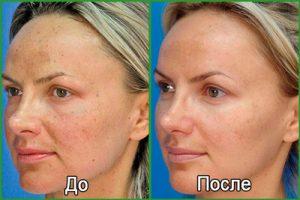Аппаратная косметология: фото до и после процедур