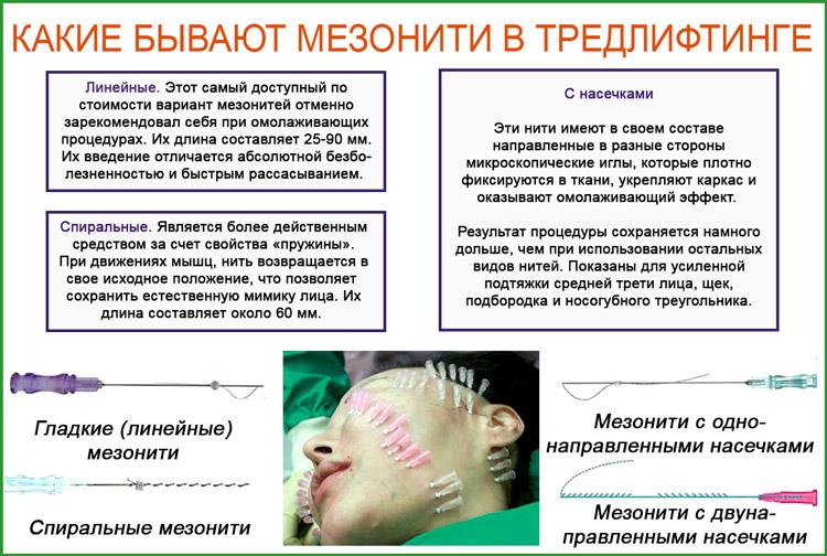 Какие бывают мезонити для подтяжки лица