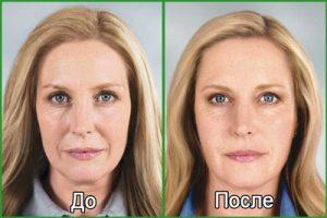 Безинъекционная кислородная мезотерапия: фото
