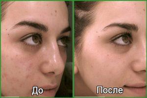 Лазерное омоложение кожи лица: описание процедуры, фото до и после