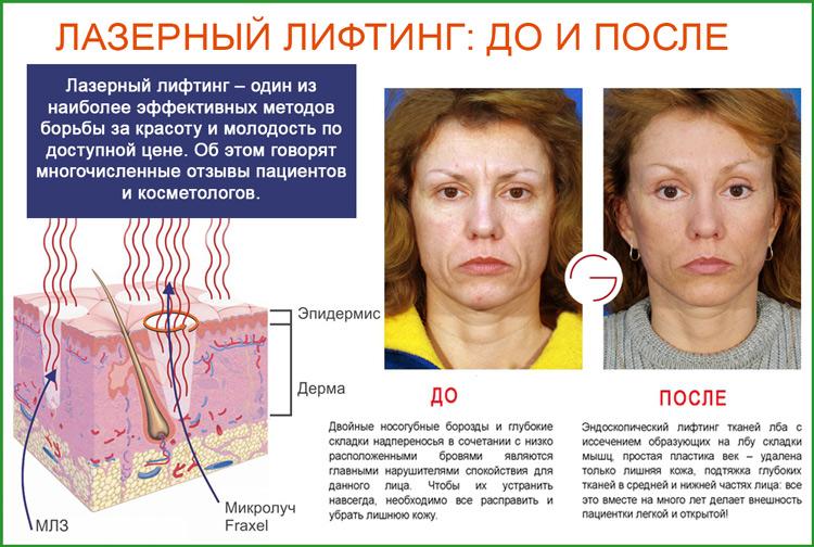 Лазерный лифтинг лица: фото до и после