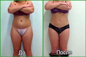 RF лифтинг лица: что это, фото до и после
