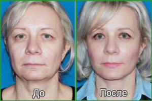 Мезонити: фото до и после подтяжки лица