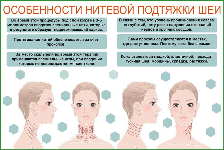 Подтяжка шеи нитями (платизмопластика)