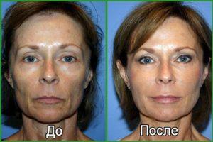 Плазмолифтинг: фото до и после, что это такое