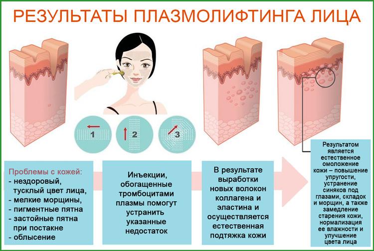 Плазмолифтинг: методика процедуры