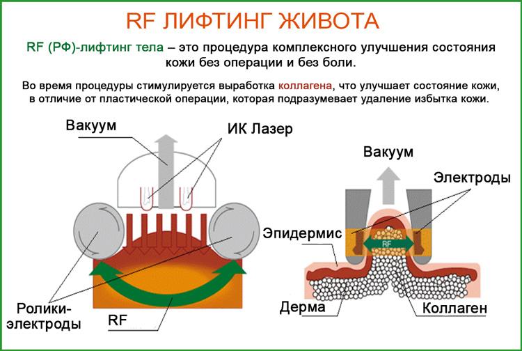 РФ-лифтинг тела (живота)