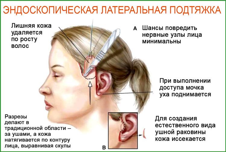 Эндоскопическая латеральная подтяжка: процедура