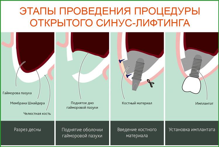 Синус-лифтинг: этапы проведения