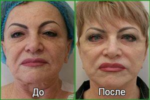 Фейслифтинг: фото до и после