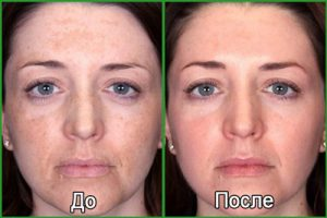 Фото до и после процедуры фотоомоложения лица