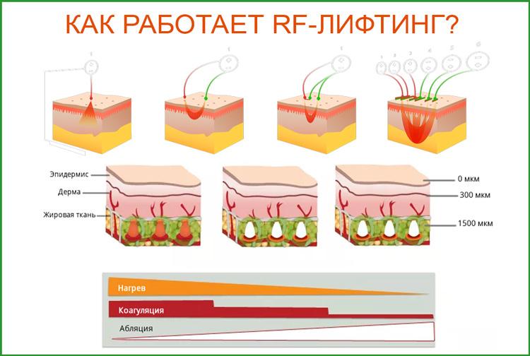 Как работает радиоволновой RF-лифтинг?